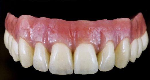 Dantų implantai akcija